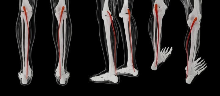 3d rendering medically accurate muscle illustration of the plantaris
