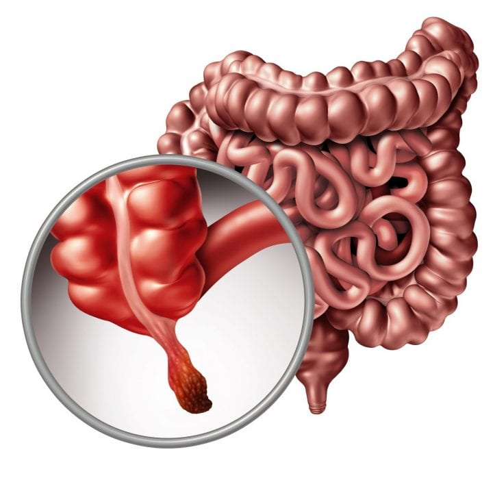 Appendicitis and appendix inflammation disease concept as a close up of human intestine anatomy as a 3D illustration.
