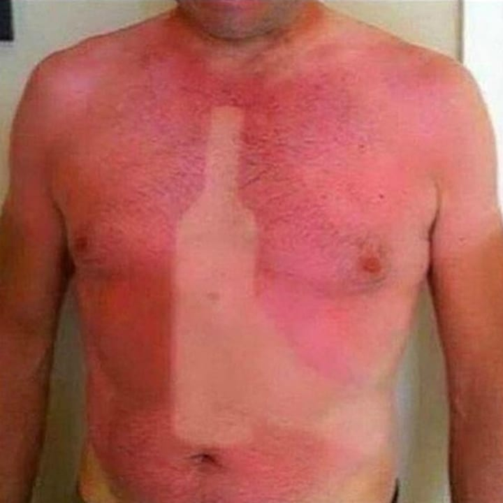 Beer sunburn